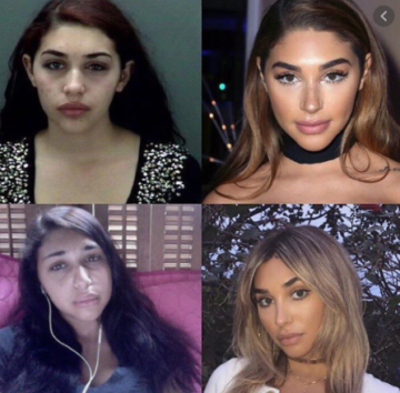chantel before and after